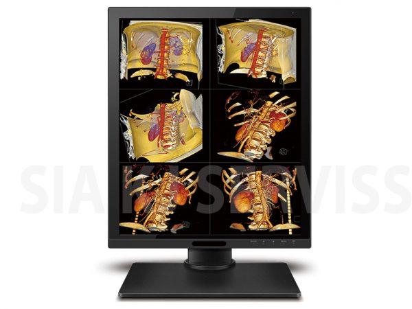 Medicīnas monitori